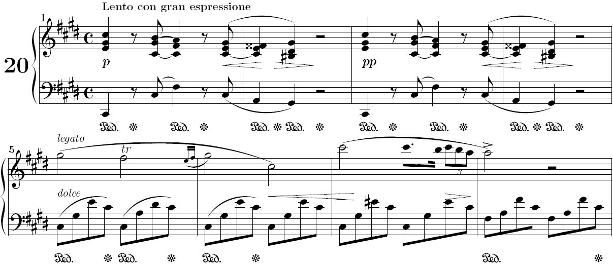 Opening bars of Chopin's nocturne in C sharp minor Op. posth.